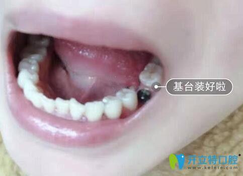 我在成都博爱口腔做种植牙安装基台