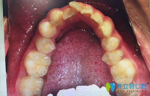 牙弓狭小需要扩弓的病例图
