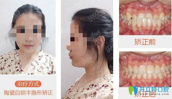 深圳格伦菲尔口腔牙齿矫正案例图