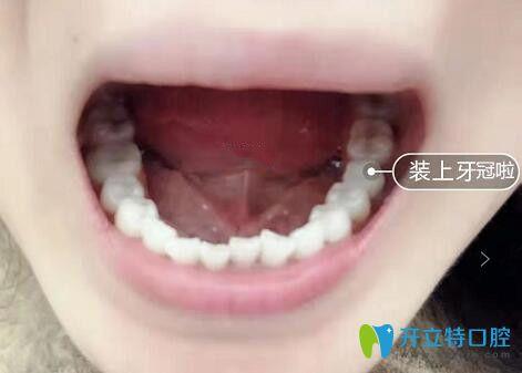 我在成都博爱口腔做即刻种植牙装上牙冠