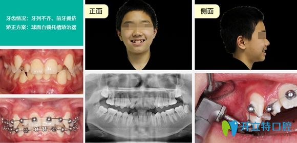 深圳正夫口腔采用球面托槽矫正牙齿效果图