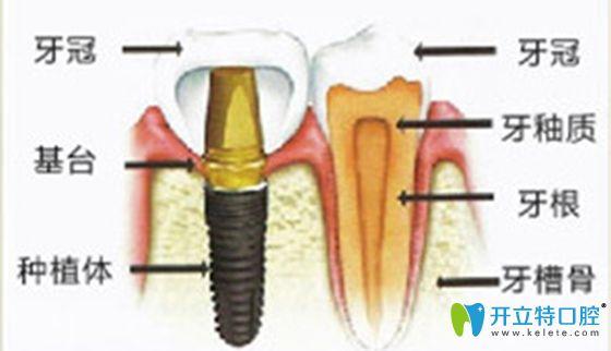 牙槽骨与种植牙图解