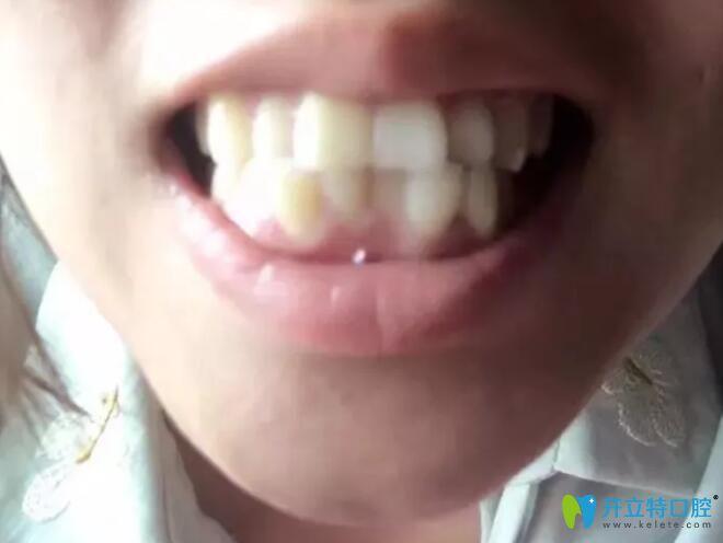 焦作哪里矫正牙齿好?拜博口腔牙齿矫正下牙套后经历分享