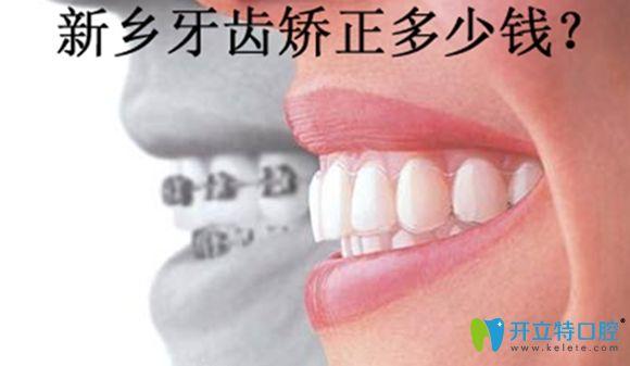 新乡牙齿矫正价格表暂以拜博口腔收费价格为示例来参考