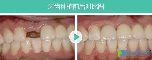 郑州唯美单颗牙缺失案例图