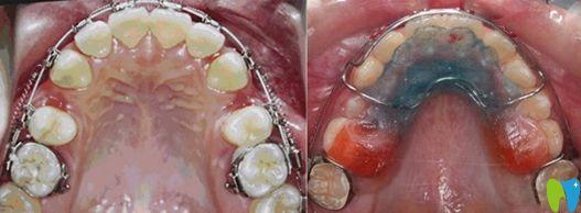 牙齿矫正扩牙弓和拔牙对比图