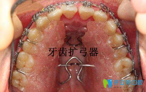 牙齿扩弓器示意图