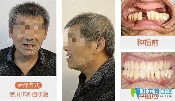格伦菲尔口腔种植牙案例图
