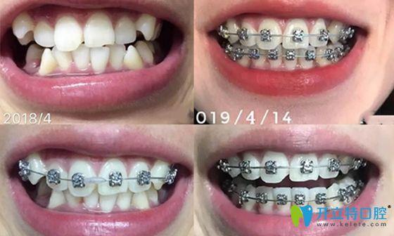 西安壹加壹口腔矫正牙齿前后效果对比图