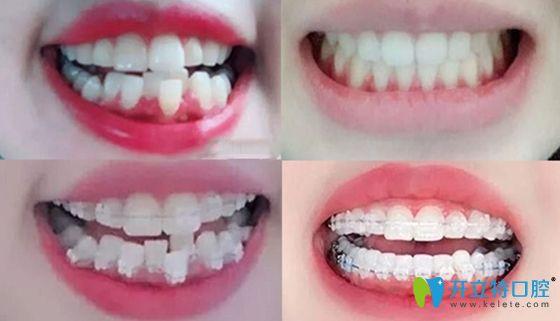 西安美立方口腔整牙案例前后效果对比图
