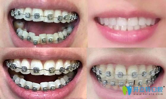 西安画美口腔牙齿矫正案例效果图