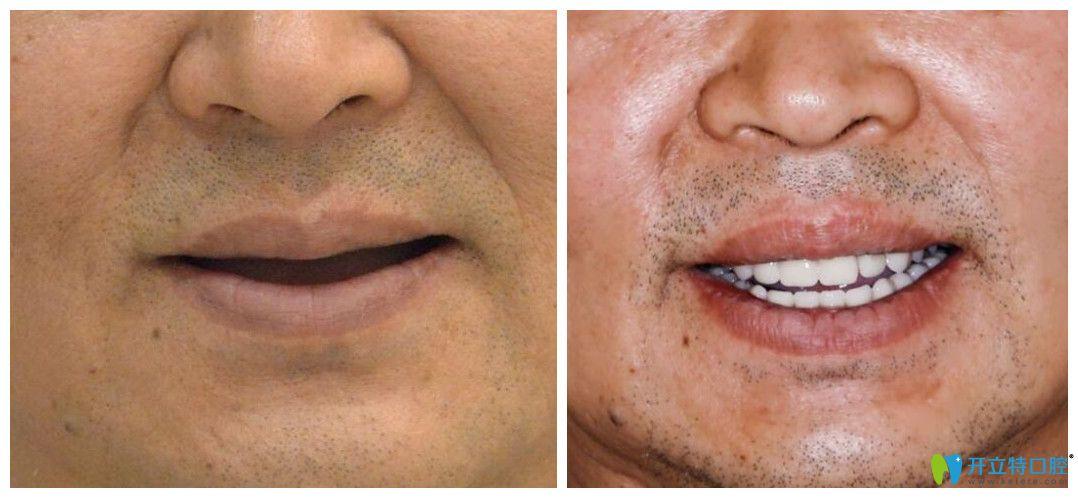 西安中诺口腔立得用种植牙效果