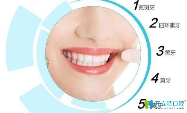 哪些牙齿需要做美白
