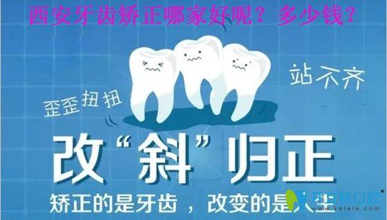 西安牙齿矫正哪家好呢