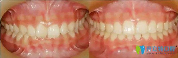 唯美口腔牙齿深覆合案例图示