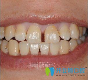 我牙齿门牙缝隙大,是在西安惟真口腔做全瓷牙贴面给改善的
