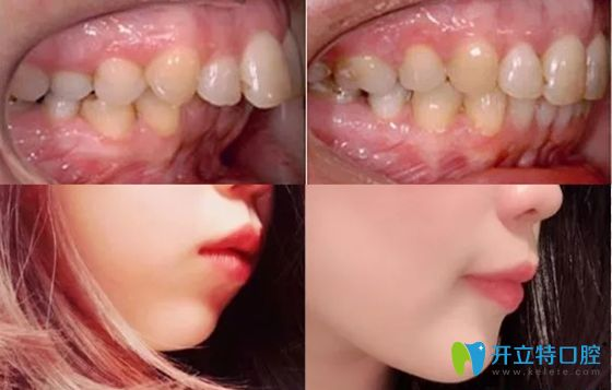 西安中诺口腔牙齿矫正案例效果
