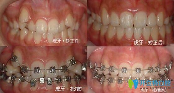 西安康洁口腔牙齿矫正案例效果