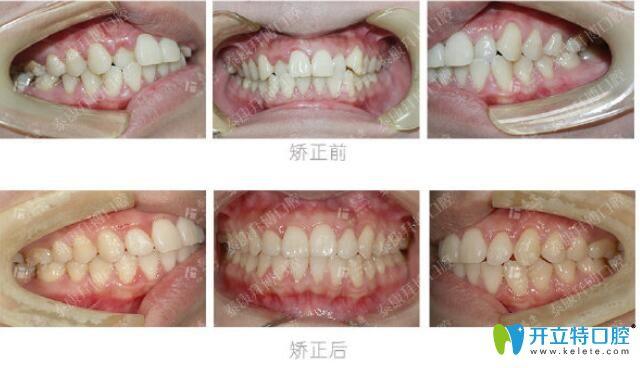 焦作拜博口腔个别牙齿反颌矫正案例