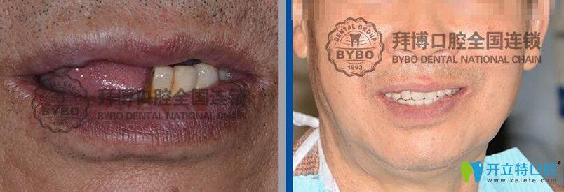 拜博口腔全口牙即刻负重种植案例前后效果对比