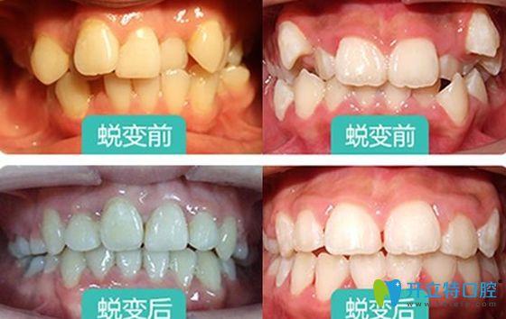 西安惟真口腔牙齿矫正前后效果图