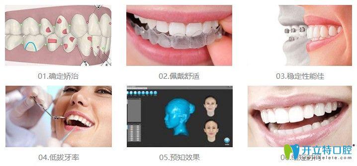 北京维嘉口腔数字化正畸优势