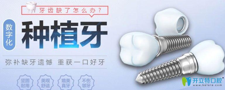 维嘉口腔种植牙优势