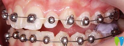 我在深圳正夫口腔做球面自锁托槽矫正,避免了牙套钢丝扎嘴