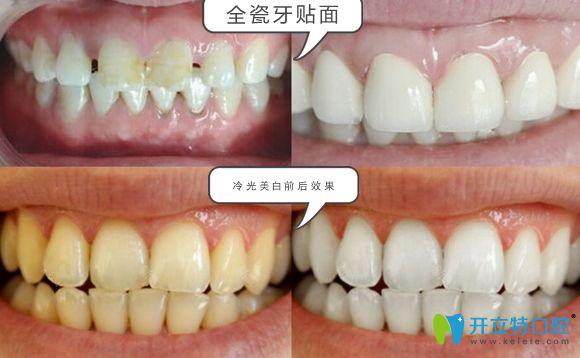济南韩氏口腔全瓷牙贴面和冷光美白效果图