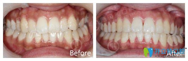 德贝美口腔牙齿不齐矫正案例图