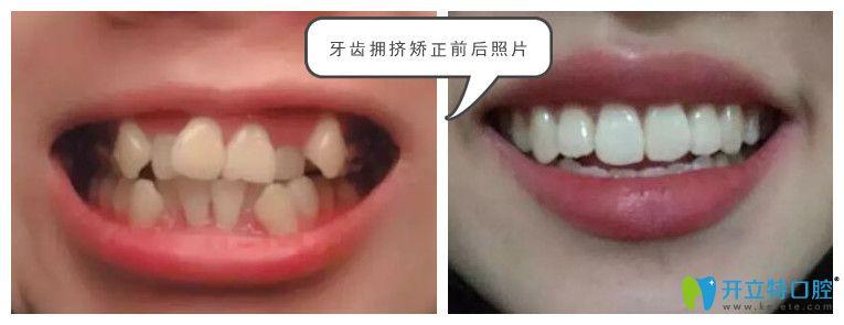深圳阳光口腔牙齿拥挤矫正案例