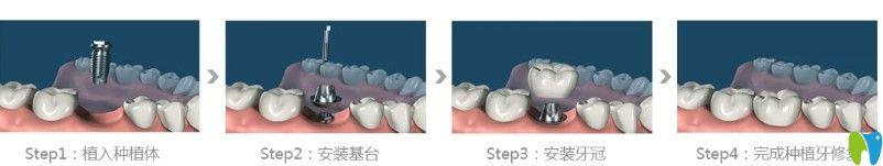 维嘉口腔种植牙过程图示