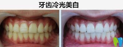 深圳阳光口腔牙齿冷光美白案例