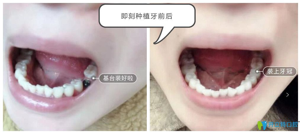 上海英博口腔翁弘元给我做单颗种植牙效果