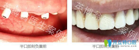 上海英博口腔翁弘元半口种植牙案例