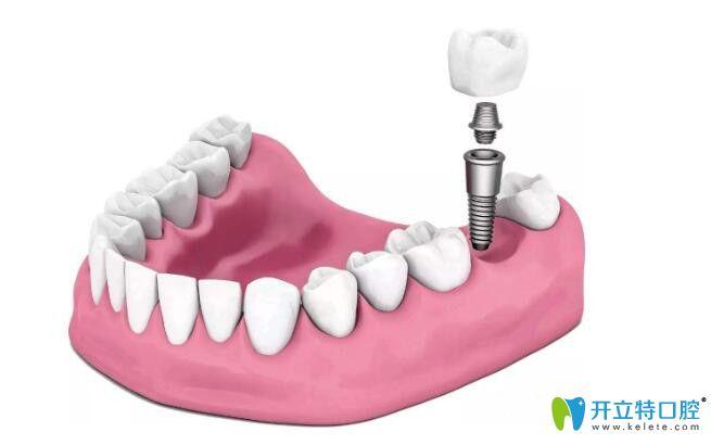 牙齿缺失可以使用烤瓷牙也可以用种植牙