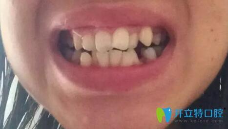 我在上海亿大口腔做隐适美牙齿矫正400天,改变牙齿拥挤错乱