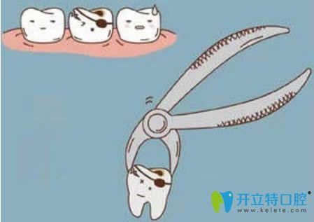 拔牙后多久可以刷牙呢