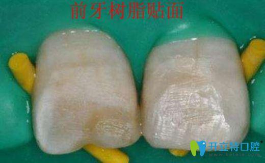 树脂贴面修复牙体缺损效果图