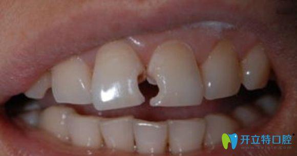 牙体缺损症状图