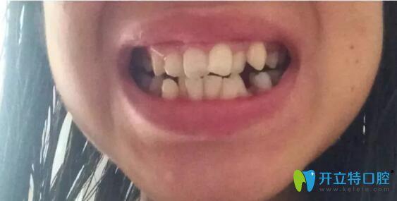在武汉华美矫正拥挤不齐的牙齿时我还怀孕了,现已下牙套