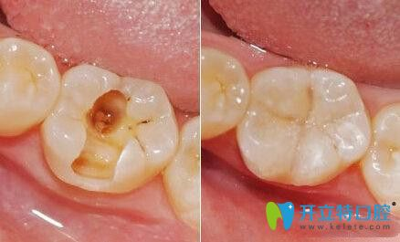 树脂补牙材料
