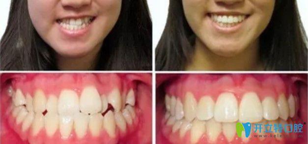 中诺口腔牙齿反颌案例图