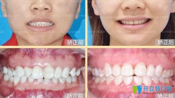 中诺口腔前牙深覆盖案例图
