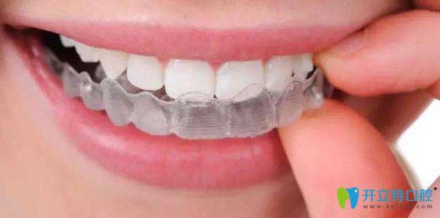 隐形牙套图