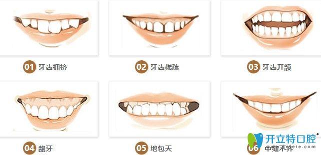 哪些牙齿需要做矫正图示