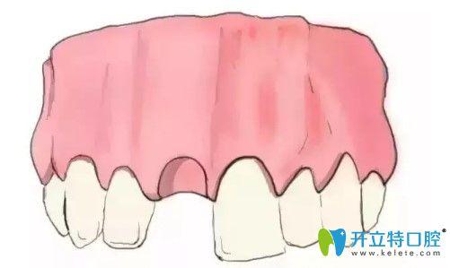 揭开天津中诺口腔种植牙全过程,含单颗/多颗和全口义齿种植