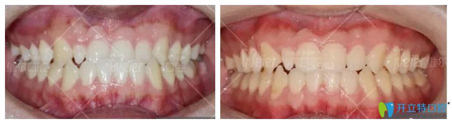 维尔口腔地包天、前牙反合矫正案例图