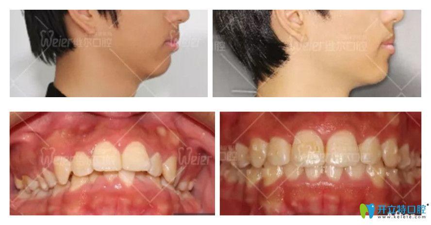 维尔口腔牙齿不齐、嘴凸矫正案例图