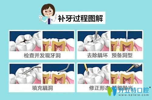 补牙过程图解